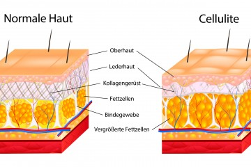 The formation of cellulite.  Cellulite occurs in most females and rarely in males. Vector diagram.